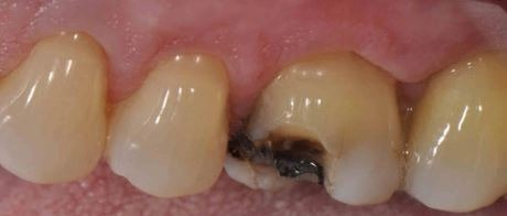 crown-implication-broken-tooth