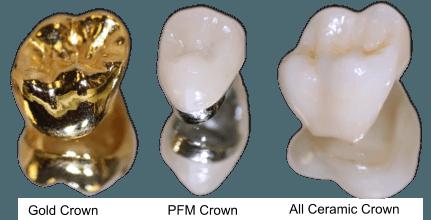 crown-material