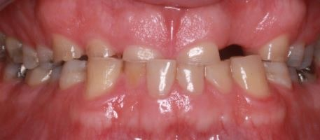 dental-bridge-multiple-crowns