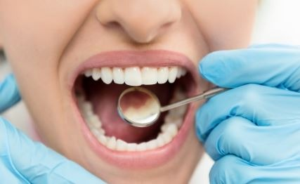 dental-bridge-orange-county