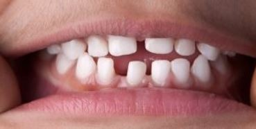 dental-bridge-small-gap