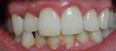 dental-cleaning-tartar-buildup