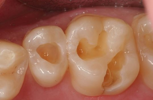 dental-filling-cavities