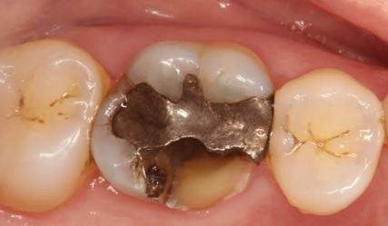 dental-filling-limitations