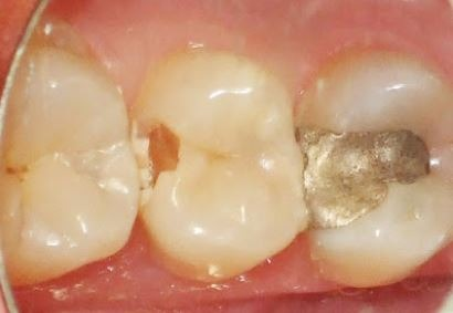 dental-filling-removing-tooth-decay
