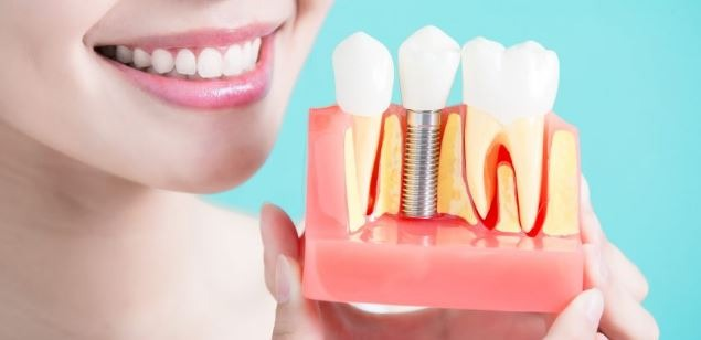 dental-implant-candidate-orange-county