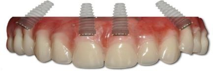 dental-implant-consult-orange-county