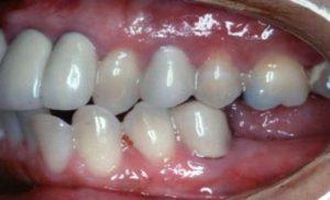 dental-implants-missing-chewing-teeth