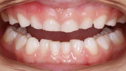 dental-implants-teeth-grinding