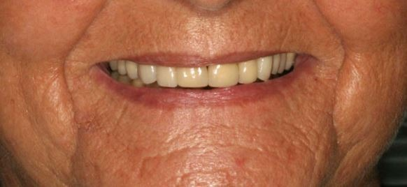 denture-benefits