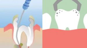 emergency-dental-treatment-options