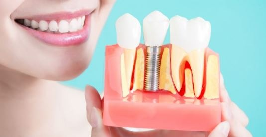 full-mouth-dental-implants-cost