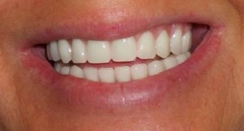 full-mouth-dental-implants-orange-county