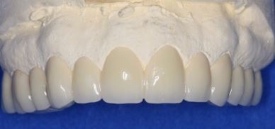 full-mouth-dental-implants-porcelain-crowns