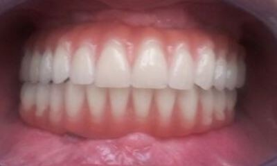 full-mouth-dental-implants-san-clemente