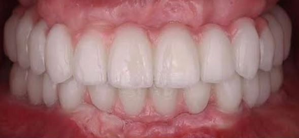 full-mouth-dental-implants-crowns-bridges