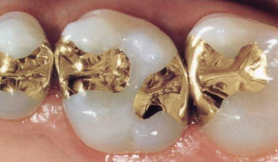 general-dentistry-dental-filling