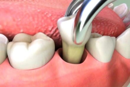 general-dentistry-tooth-extraction