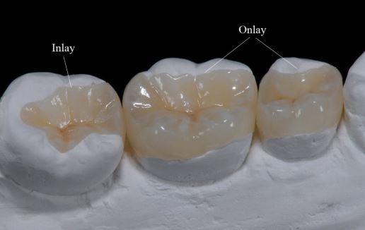 inlay-onlay-dental-filling