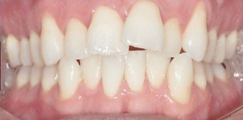 invisalign-teeth-crowding