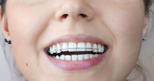 orthodontic-retainers-san-clemente-orange-county