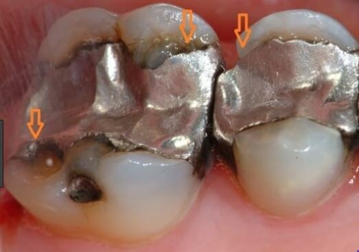 replacing-broken-silver-dental-fillings