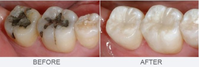 replacing-silver-white-dental-fillings