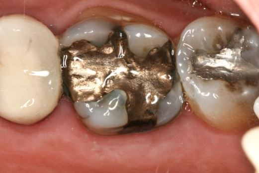 silver-fillings-contain-mercury