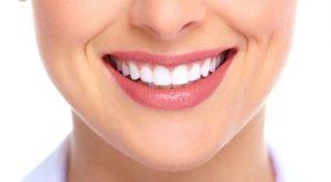 teeth-whitening-costs-orange-county