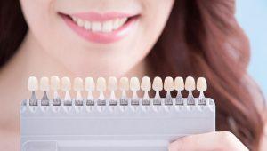 teeth-whitening-dentist-chairside