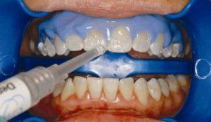 teeth-whitening-dentist-procedure