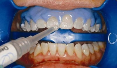 teeth-whitening-dentist-procedure