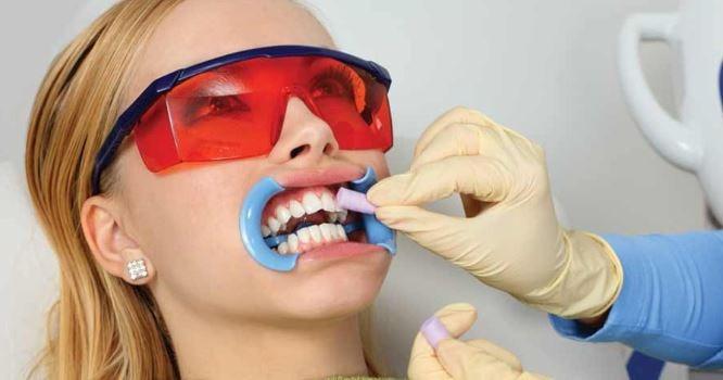 teeth-whitening-dentist