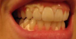 teeth-whitening-gum-damage