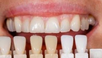teeth-whitening-treatment-options