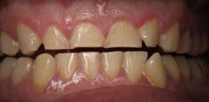 Inlay-onlay-teeth-grinding