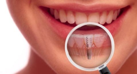 dental-implant-post-op