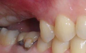 inlay-onlay-missing-teeth