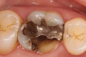 inlay-onlay-severely-broken-molar