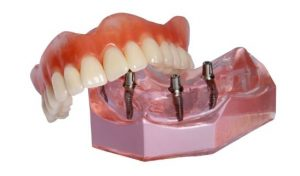 snap-on-overdentures