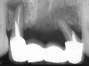 tooth-loss-defective-dental-prosthesis