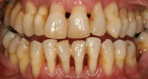 tooth-loss-gum-disease