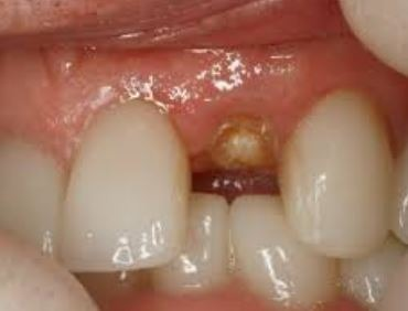 tooth-loss-non-restorable