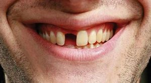 tooth-loss-orange-county
