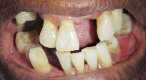 tooth-loss-significance